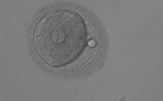 <p><strong>Figure 105</strong></p><p>A zygote observed 18 h post-ICSI displaying very unequal-sized juxtaposed PNs, with the smaller PN being less visible (200× magnification). Two polar bodies and small-sized NPBs are scattered in both PNs.</p>