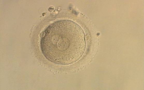 <p><strong>Figure 108</strong></p><p>A zygote generated by ICSI with one large and one normal-sized PN (200× magnification). The two polar bodies are at opposite sides of the oocyte.</p>