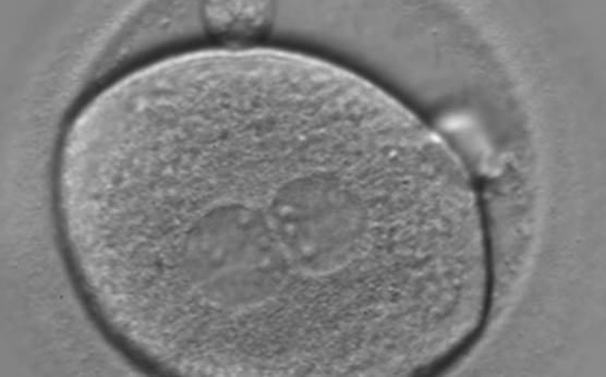 <p><strong>Figure 124</strong></p><p>A zygote of irregular shape observed 18 h post-ICSI (400× magnification). The visible PNs show unequal distribution of the NPBs. PNs are juxtaposed and centralized and the polar bodies form a great angle with respect to the longitudinal axis through the PNs. It was transferred but failed to implant.</p>