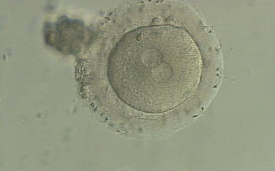 <p><strong>Figure 131</strong></p><p>A zygote generated by IVF with a thick ZP (400× magnification). PNs are juxtaposed in the cytoplasm, which has a clear cortical zone. NPBs are small and aligned in one PN and scattered in the other. A refractile body is visible at the 11 o'clock position in this view.</p>