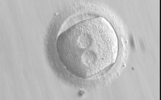 <p><strong>Figure 136 (a)</strong></p><p>A zygote with an irregular shape, generated by ICSI and observed 18 h post-ICSI (400× magnification). The polar body had been biopsied. PNs are widely separated and contain scattered small NPBs.</p>