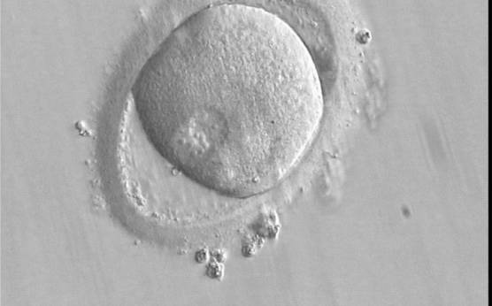 <p><strong>Figure 145</strong></p><p>A zygote observed 16 h post-ICSI with peripherally positioned PNs (400× magnification). A large PVS is present inside a deformed, ovoid ZP. The oocyte has a clear cortical zone in the cytoplasm. It was not transferred because of arrested development.</p>
