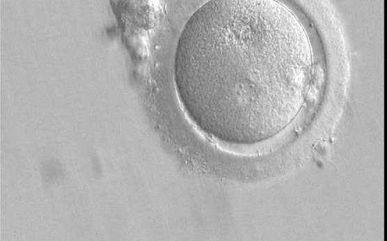 <p><strong>Figure 148</strong></p><p>A zygote which is entering syngamy and is displaying membrane breakdown particularly evident in the upper PN (400× magnification). The observation was performed 15 h after ICSI. One of the two PNs and its associated NPBs are now very indistinct. It was transferred but failed to implant.</p>