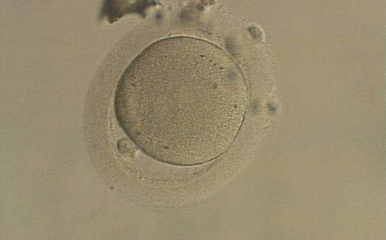 <p><strong>Figure 149</strong></p><p>An ICSI zygote which has entered syngamy and is displaying pronuclear membrane breakdown (200× magnification). The NPBs are no longer distinct. It was transferred but the outcome is unknown.</p>