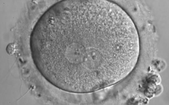 <p><strong>Figure 161</strong></p><p>A zygote generated by IVF with inequality in numbers and alignment of NPBs (600× magnification). It was discarded.</p>