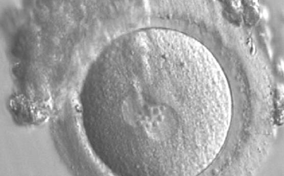 <p><strong>Figure 167</strong></p><p>A zygote generated by IVF observed 17 h post-insemination (400× magnification). PNs have similar numbers of large-sized NPBs aligned at the PN junction. The PVS is slightly enlarged and the ZP is normal in size and surrounded by some granulosa cells. It was transferred but failed to implant.</p>