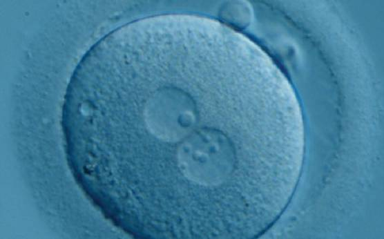 <p><strong>Figure 187</strong></p><p>Zygote generated by ICSI with one 'bull's eye' NPB in one PN and small, different-sized NPBs in the other (400× magnification). It was transferred but clinical outcome is unknown.</p>