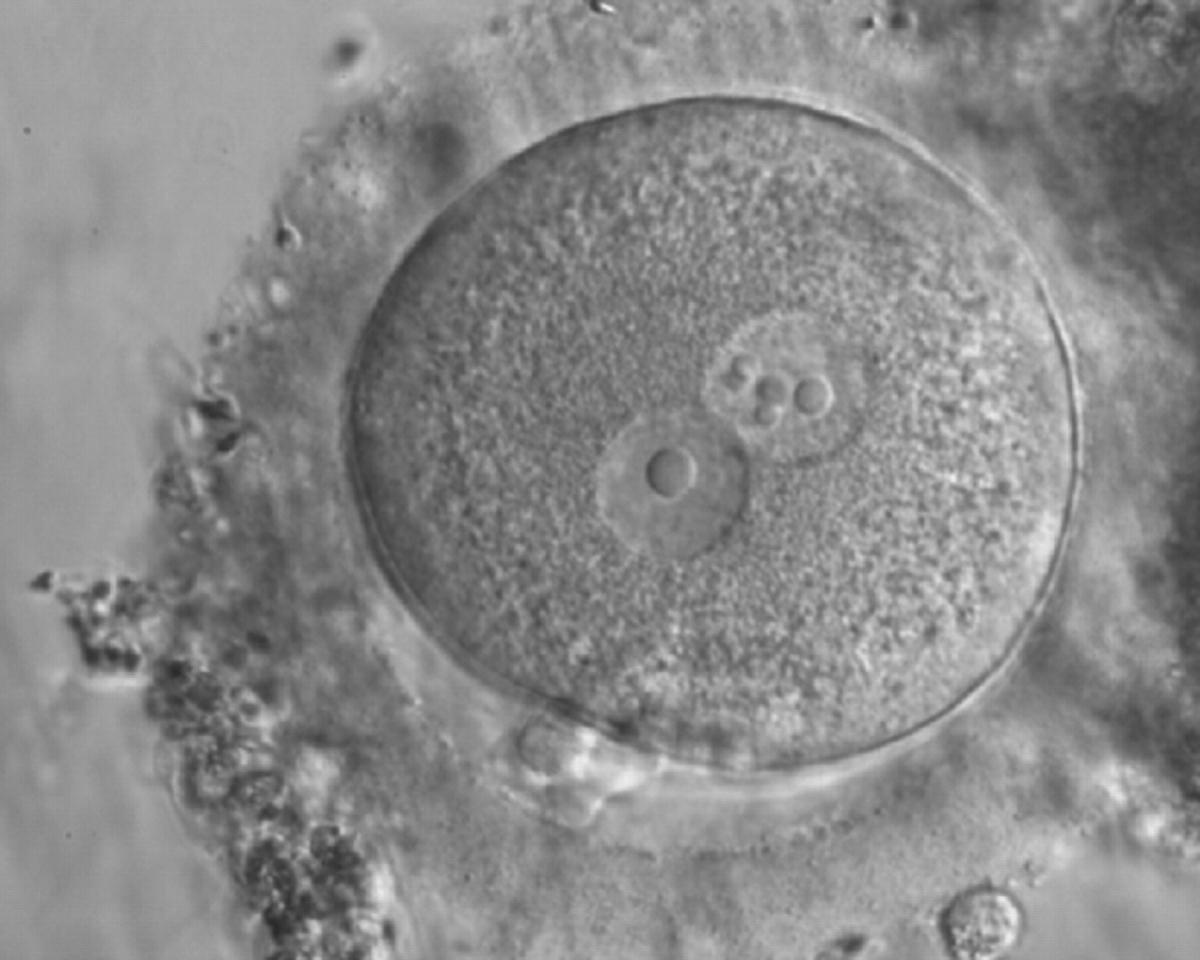 D  Nucleolar precursor bodies - Eshre