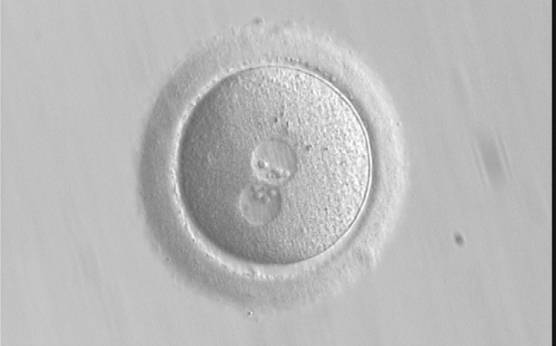 <p><strong>Figure 191</strong></p><p>A zygote generated by ICSI, which subsequently underwent polar body biopsy, shows normal cytoplasmic morphology (400× magnification). It was discarded due to aneuploidy.</p>