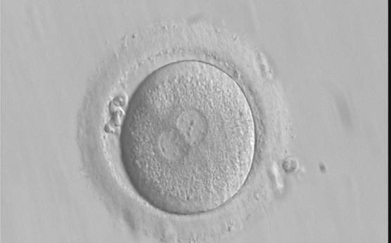<p><strong>Figure 192</strong></p><p>A zygote generated by IVF with frozen/thawed ejaculated sperm and observed at 16 h post-insemination showing normal cytoplasmic morphology with an evident clear cortical zone, the halo, in the cytoplasm (400× magnification). NPBs are scattered and different-sized, polar bodies are fragmented. It was cryopreserved.</p>
