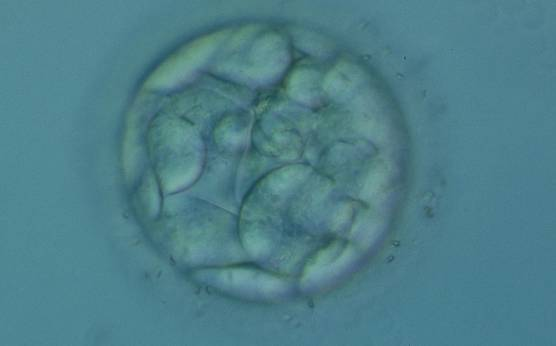 <p><strong>Figure 306</strong></p><p>An early blastocyst with a cavity occupying <50% of the volume of the embryo. Note the flattened squamous-like trophectoderm (TE) cells lining the left half of the cavity in this view. The blastocyst was transferred but failed to implant.</p>