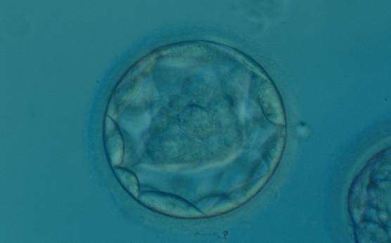 <p><strong>Figure 320</strong></p><p>Blastocyst (Grade 3:1:1) with a dense, almost triangular, ICM clearly visible at the base of the blastocyst in this view. The blastocyst was transferred but failed to implant.</p>