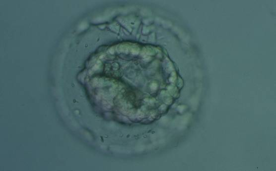 <p><strong>Figure 339</strong></p><p>Collapsed blastocyst, which judging from the thickness of the ZP, is at least a Grade 3. The ICM and TE however cannot be accurately assessed. The blastocyst was transferred but the outcome is unknown.</p>