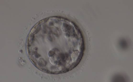<p><strong>Figure 382</strong></p><p>Poor quality, degenerating, early blastocyst in which the majority of cells are showing dark, degenerative changes.</p>