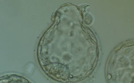 <p><strong>Figure 388</strong></p><p>Hatching blastocyst (Grade 5:1:1) in which a large, compact ICM can be seen at the 7 o'clock position and the herniating TE can be seen at the 12 o'clock position in this view. Several large fragments can be observed inside the blastocoel cavity. The blastocyst failed to implant after transfer.</p>