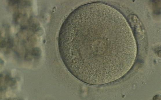 <p><strong>Figure 96</strong></p>  <p>A zygote displaying 3PNs of approximately the same size with large-sized NPBs, partly overlapped and aligned in the middle of the oocyte (400× magnification). It was generated by IVF and shows two polar bodies.</p>