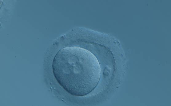 <p><strong>Figure&nbsp;98</strong></p>  <p>A zygote displaying 3PNs after IVF with a small fragment adjacent to the PNs (200× magnification). There are two polar bodies in a large PVS and a thick ZP.</p>